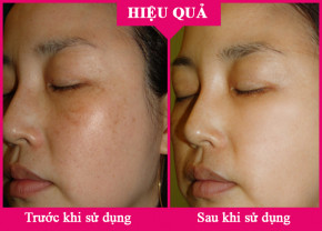 Serum giúp giảm nám Nanoluxe Dark Spot Remover by Reluma tái sinh những vùng da đầy sạm nám